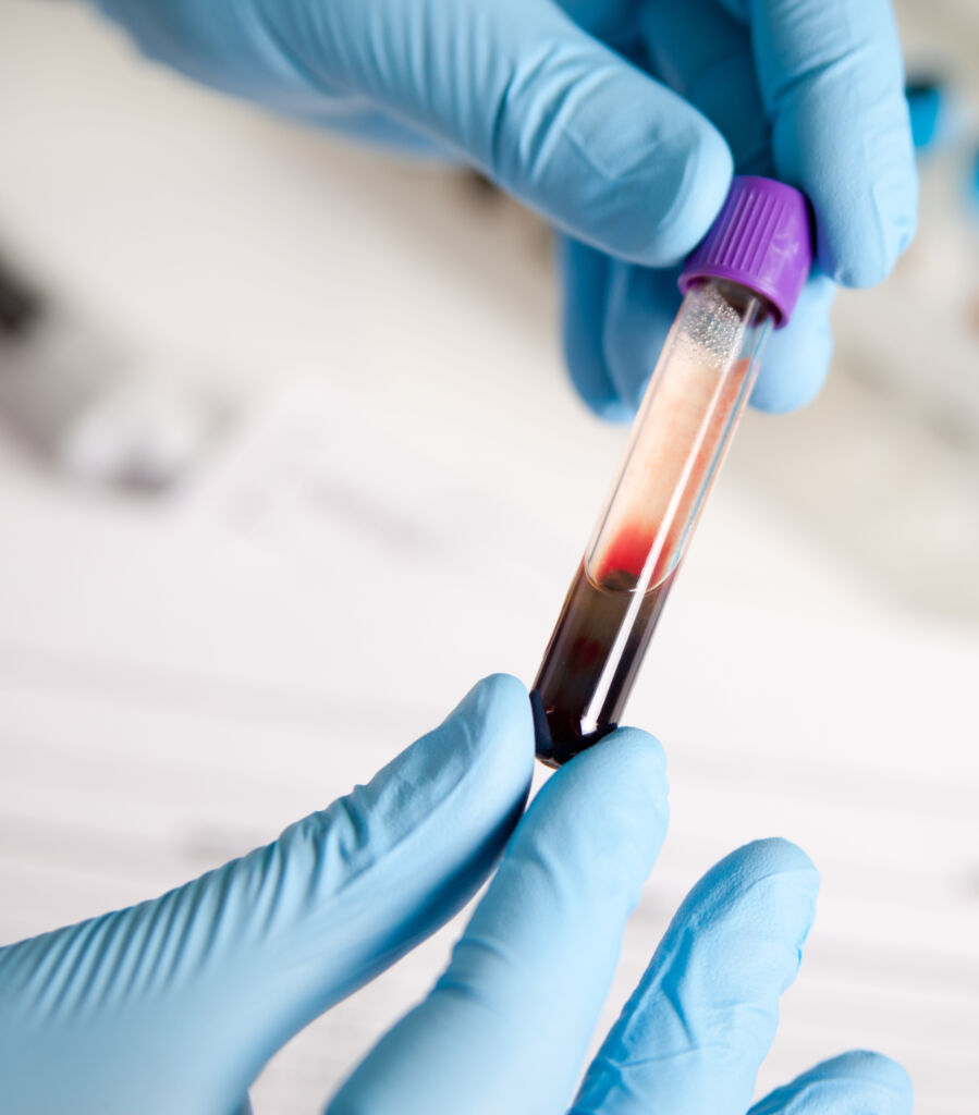 vial of blood for blood testing